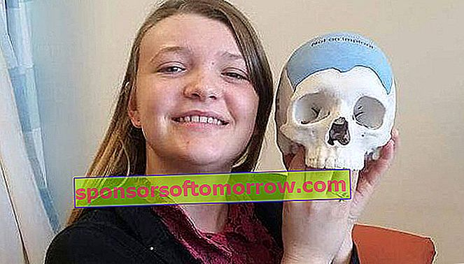 Cranial implant with 3D printing